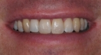 Jamie Norton Dental Case Study3