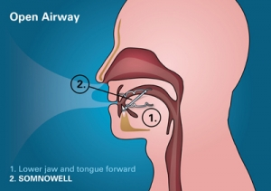 Open Airway Graphic_800